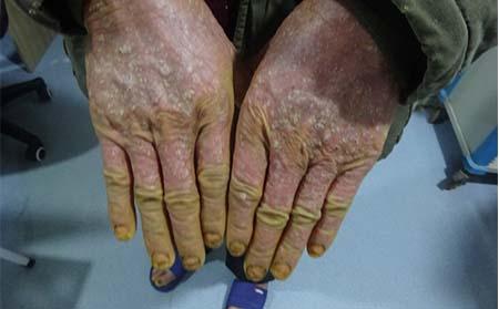 老年银屑病有什么症状