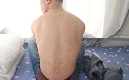 沈阳银屑病医院:感染诱发银屑病防治日常