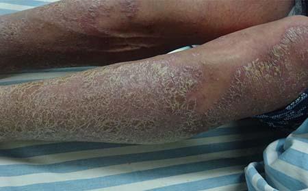 分享红皮型银屑病的症状是什么图片