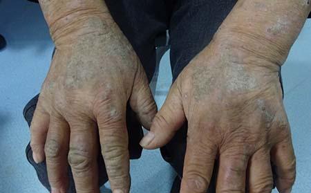 分享小儿脓疱型银屑病的症状表现图片