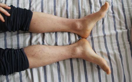 银屑病引起骨关节疼痛如何调养