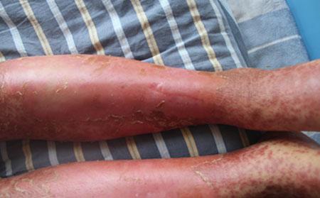 关节型银屑病该怎么治疗好