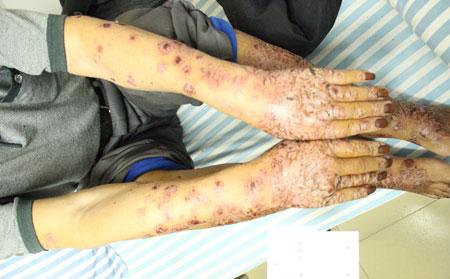 银屑病关节炎有哪几个类型